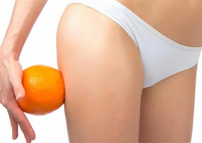 Égesd le az ellenséged! - Olcsó és könnyű narancsbőr elleni krém házilag (recepttel)