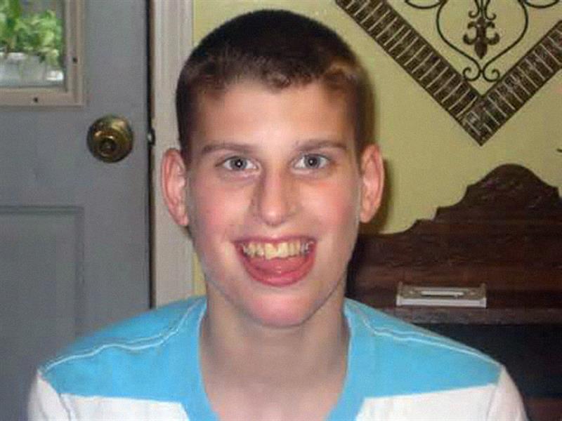 Angelman-szindrómás gyerek (forrás: internetara.com)