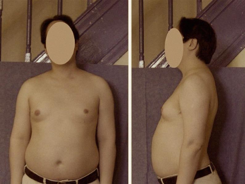 A Klinefelter-szindrómás férfiaknak nőies alakjuk van (forrás: haikudeck.com)